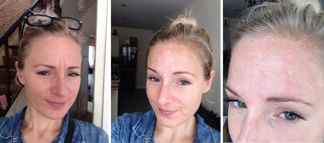 The Bride Who Tried Botox: A Real-Life Experience